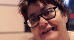 """Recuperar la sonrisa tras los malos tratos: """"La terapia me salvó la vida"""""""