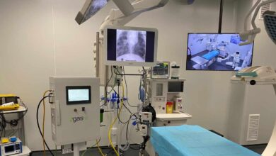 El 'fabricante de yeso' que ofreció 144 respiradores a Sanidad y salió escaldado