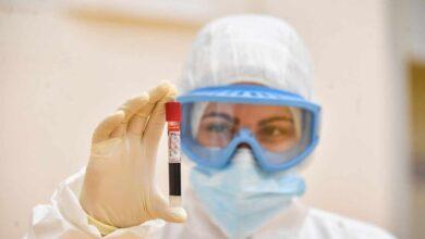 Los laboratorios privados ya han hecho el 6% de los PCR en Cataluña