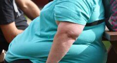 Por qué la obesidad, sin importar la edad, es un  factor de alto riesgo frente al COVID-19