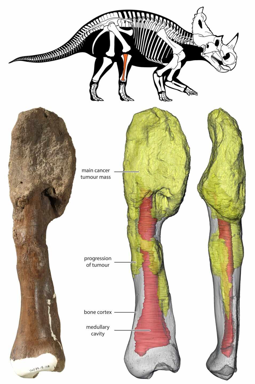 La masa tumoral principal está en la parte superior del hueso y se puede ver en la reconstrucción 3D en amarillo.