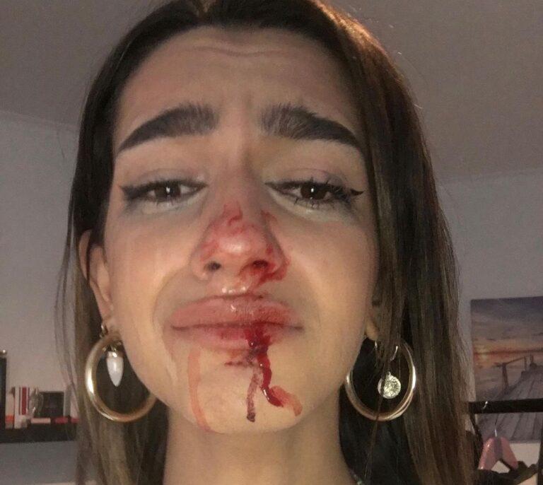 Los Mossos y la Fiscalía investigan una agresión transfóbica en Barcelona a una chica de 19 años