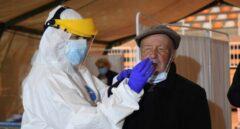 Pros y contras de implementar los test de antígenos en las farmacias