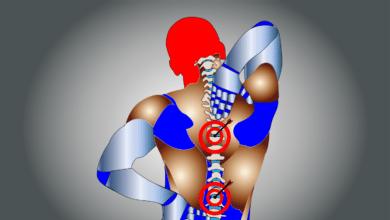 ¿Por qué las hernias discales pueden ser frecuentes entre deportistas?
