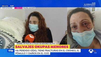 Tres okupas menores propinan una paliza a una mujer que termina con fracturas en el cráneo y un oído roto