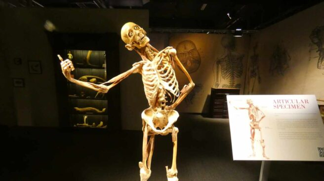 Casi la mitad de la clase trabajadora medieval padeció fracturas óseas