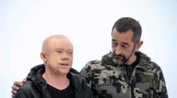 """Guineano albino operado por Cavadas: """"Al subir al avión, recuperé la esperanza"""""""