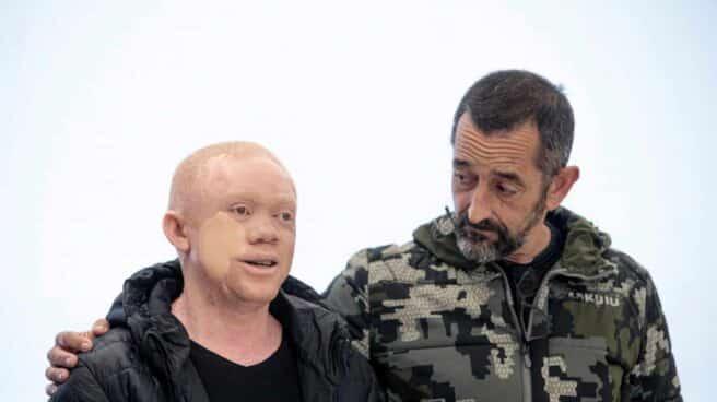Reginaldo Carlos Mguema, un guineano con albinismo de 30 años al que Pedro Cavadas
