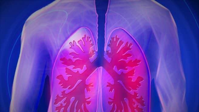 Día Mundial de la Fibrosis Quística